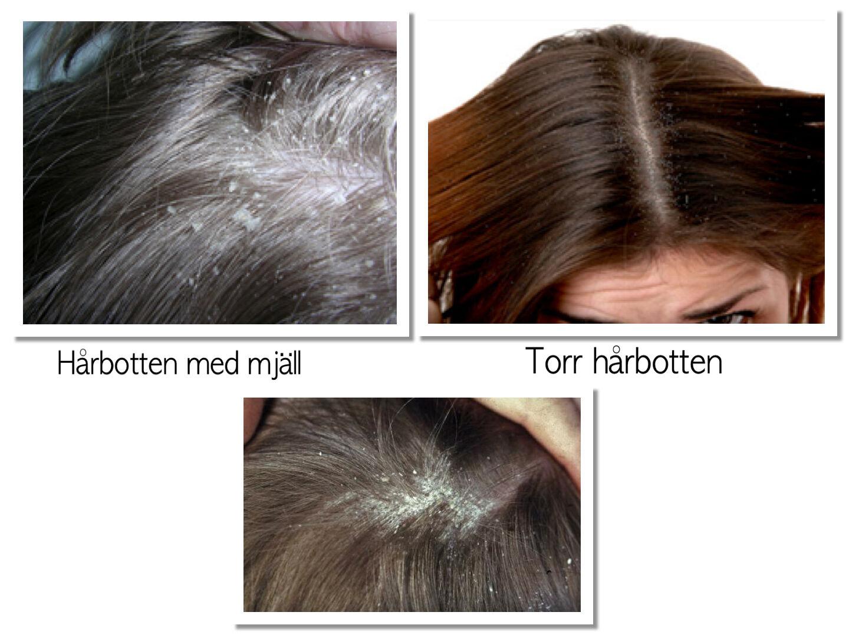 öm hårbotten stress