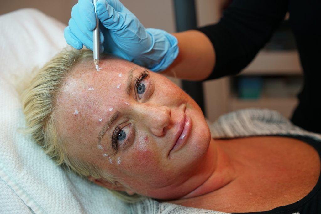 hormonell migrän akupunktur