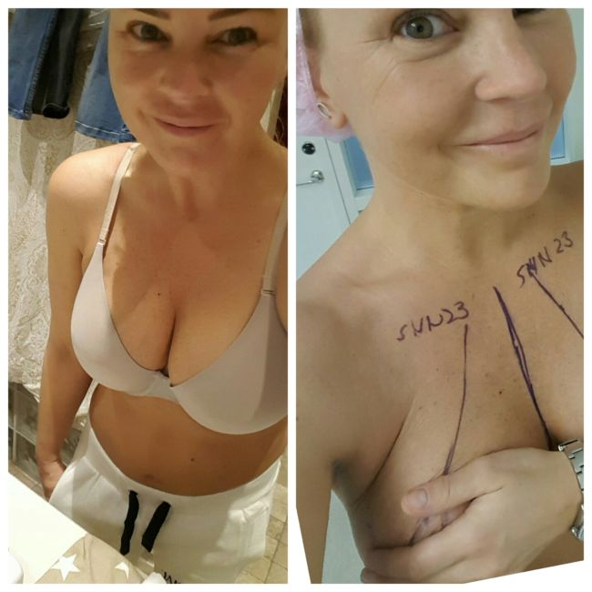 Bröstförstoring Småland